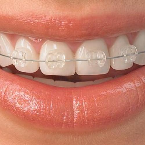 Ortodoncia Adultos