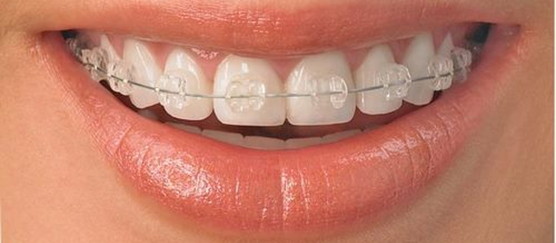 Ortodoncia con brackets trasparentes Adultos