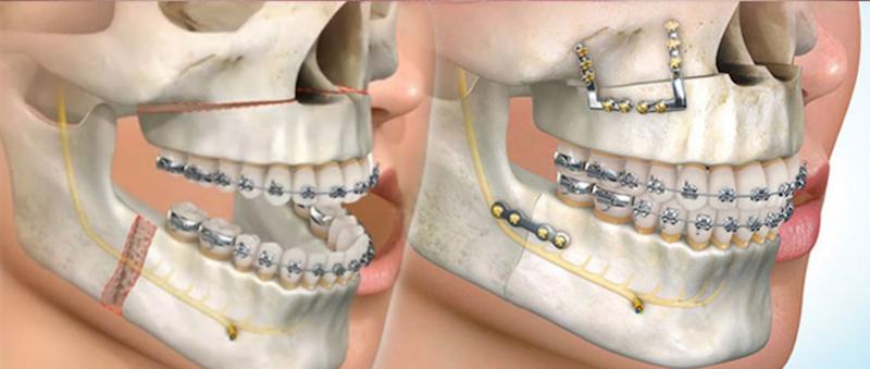 ortodoncia-quirurgica-2