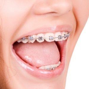Ortodoncia Adolescentes
