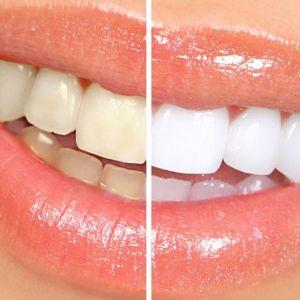 Blanqueamiento dental en clínica o ambulatorio