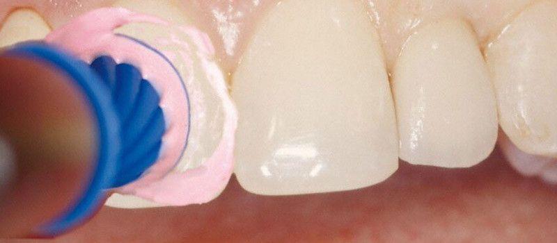 Carillas dentales de composite y porcelana