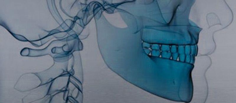 Ortodoncia Quirúrgica Adultos