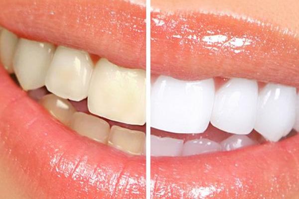 blanqueamiento-dental-raga