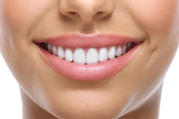 carillas-dentales-raga