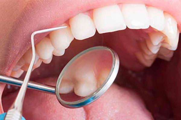 Higiene y periodoncia para adolescentes
