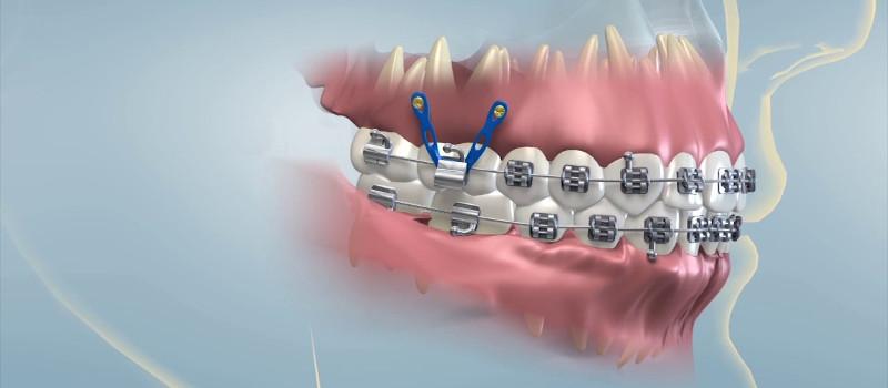 Ortodoncia con minitornillos Adultos