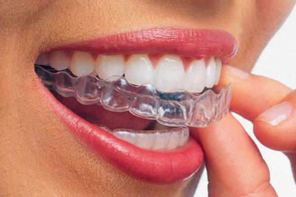 ortodoncia-invisalign-raga