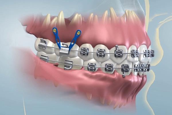 ortodoncia-microtornillos
