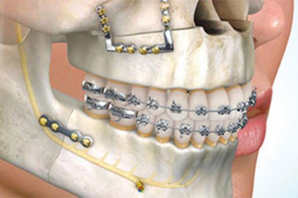 ortodoncia-quirurgica