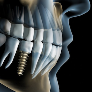 implantologia-dental