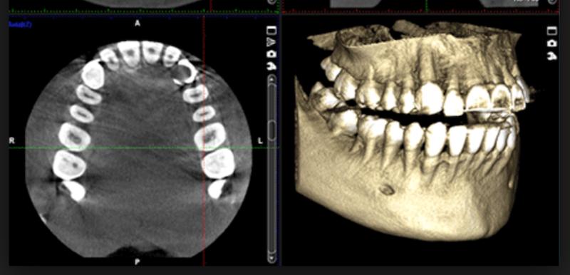 tac-dental-3d-cbct