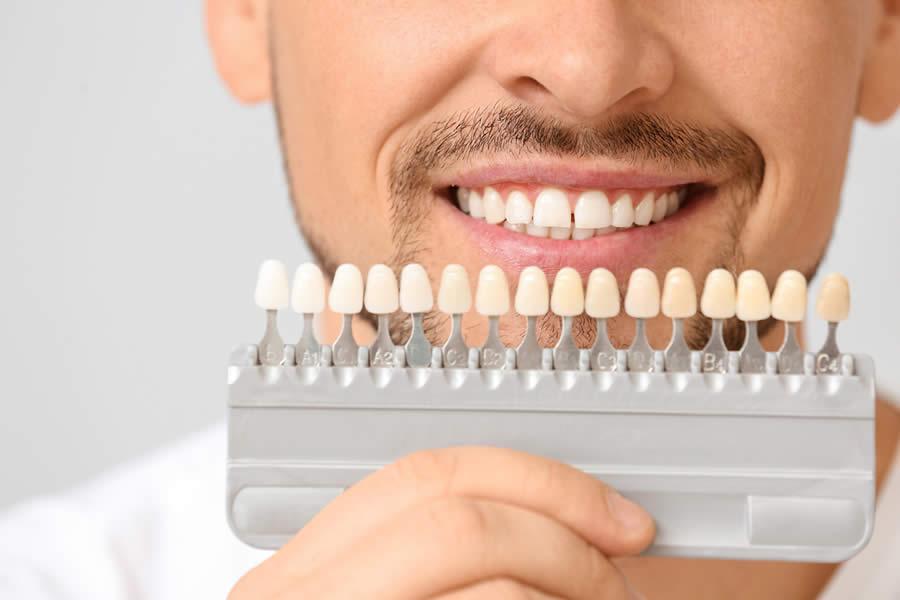 Blanqueamiento dental en Raga Ortodoncia